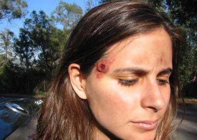 Facial gunshot wound special effects makeup done by Jill.