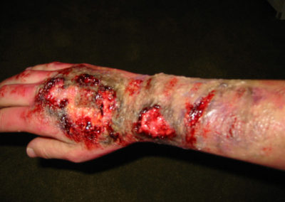 Flesh burn special effects makeup done by Jill.